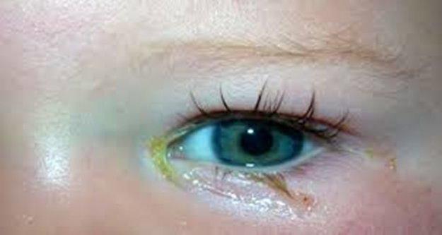 Gözdeki çapaklanmaya dikkat