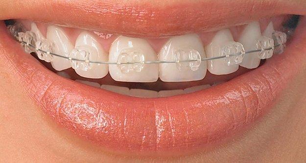 Diş teli kullanmaya son