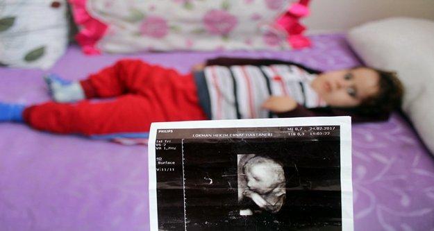 Çocukları için 2 yıldır hastaneden çıkamayan ailenin dramı yürekleri sızlattı!