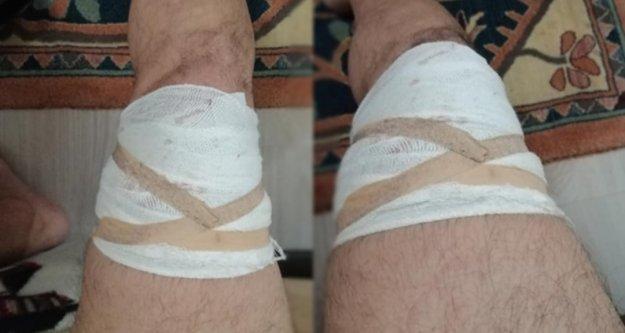 Alanya#039;da zabıta az kalsın bacaklarından oluyordu