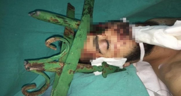 Alanya'daki kazada gencin yüzüne saplanan çubuk için hastanedeki operasyona itfaiye de dahil oldu