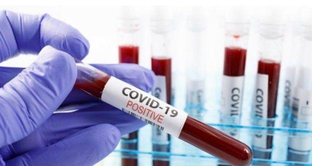 Üşüttüm diyene koronavirüs testi yapılacak