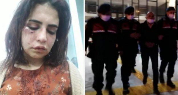 Alanya'da eski sevgilisini bu hale getiren zanlı tutuklandı