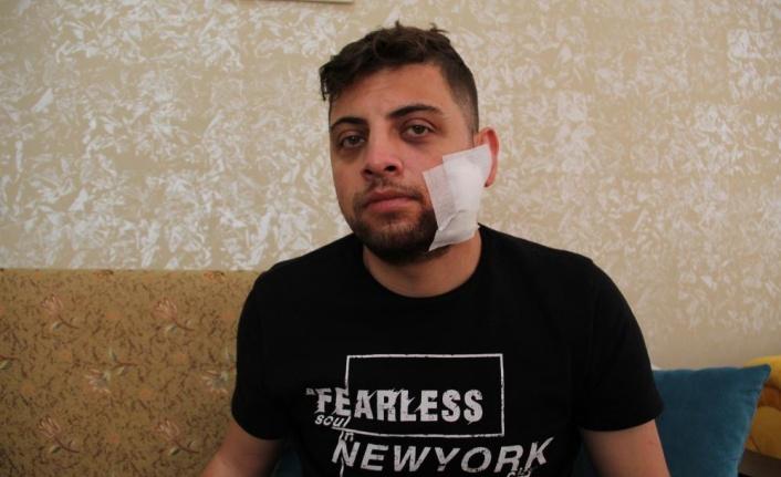 Kadına tokat attı diye uyardı, çatalla yüzünden yaralanıp hastanelik oldu