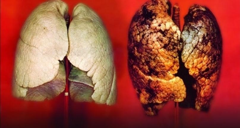 Sigara içmek akciğer sertleşmesinde başrol oynuyor