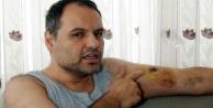 Tartıştığı hasta bakıcı tarafından kolundan ısırılan vatandaş hastanelik oldu
