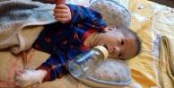 Alanyalı Mete bebeğin hayatı gelecek yardımlara bağlı