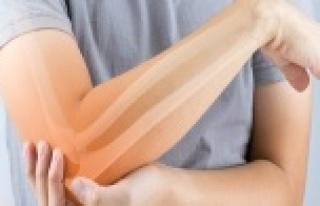 Uzman doktordan romatizma hastalarına Covid-19 uyarısı