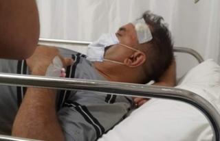 Alanya'da eski başkan vekili kaza yaptı